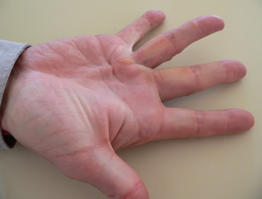 Dupuytren's contracture on ring finger