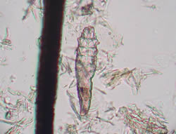 Demodex folliculorum mite next to a human hair